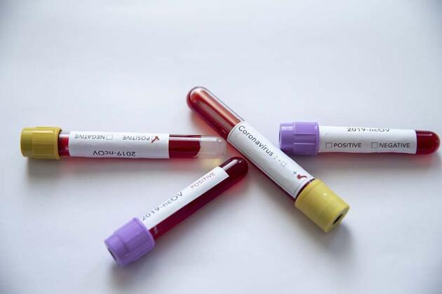 """Kan grubu """"O"""" veya """"negatif"""" olanların koronavirüse yakalanma riski daha az"""