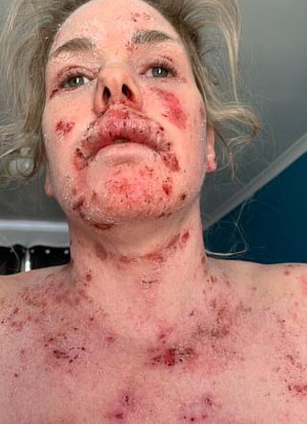 Egzama için kullandığı krem, tüm vücudunda yara çıkmasına neden oldu