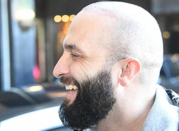 Berkay'ın geçtiğimiz haftalarda saç ektirdiği ortaya çıktı