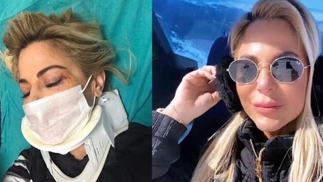 Burcu Şendir kayak kazası geçirdi