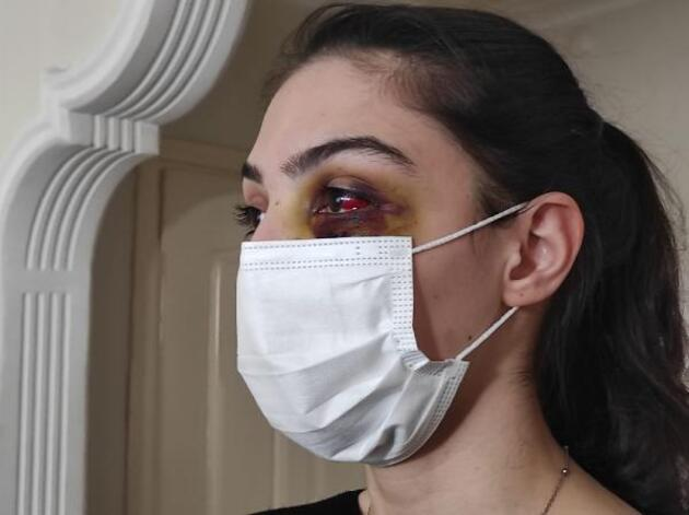 Telefonda video izlediği için kocası tarafından dövüldü