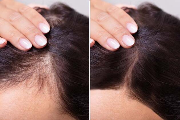 Saç dökülmesi Covid-19 habercisi mi? Saç dökülmesine neden olan hastalıklar