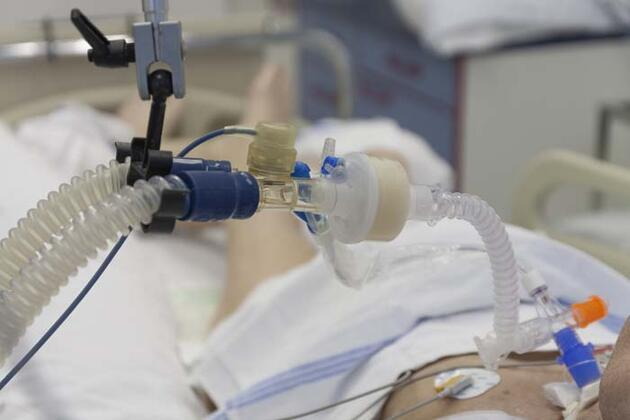 Covid-19'da hastaneye yatışların en önemli nedeni! Hastalığın seyrini değiştiriyor