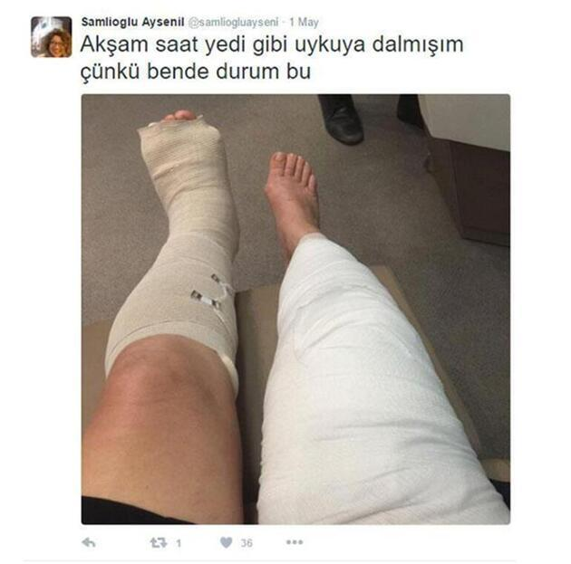 Ayşenil Şamlıoğlu sevenlerini korkuttu! Sette ayağını kırdı