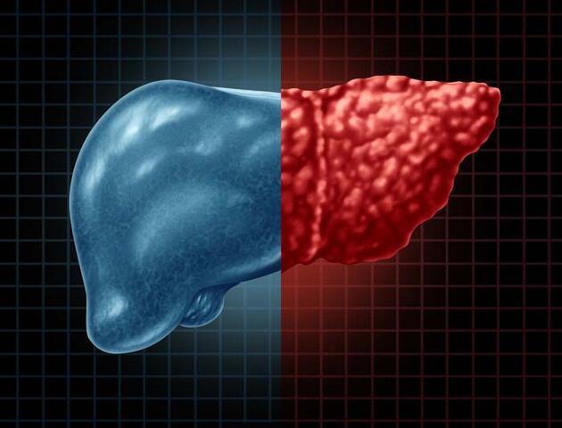Karaciğer yağlanmasını tetikleyen 3 risk! Kritik uyarı: Siroz ve kansere yol açabilir