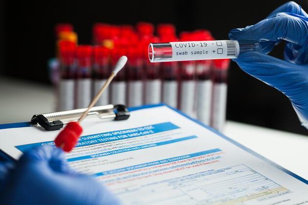 Milyonlarca çalışanı ilgilendiriyor: PCR testi yaptırmayan işten çıkarılabilir mi? İşte 13 tüm merak edilenler