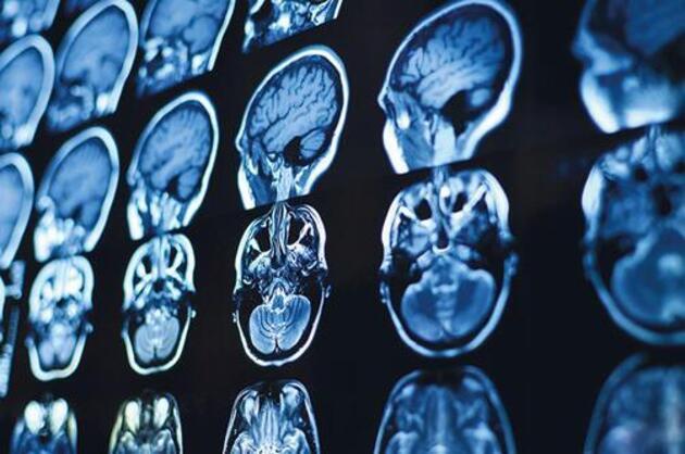 Osman Müftüoğlu yazdı: COVID-19 beyni küçültüyor