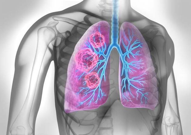 En çok görülen kanser türlerli arasında ilk 5'te! Akciğer kanserinin belirtileri neler, nasıl tedavi edilir?