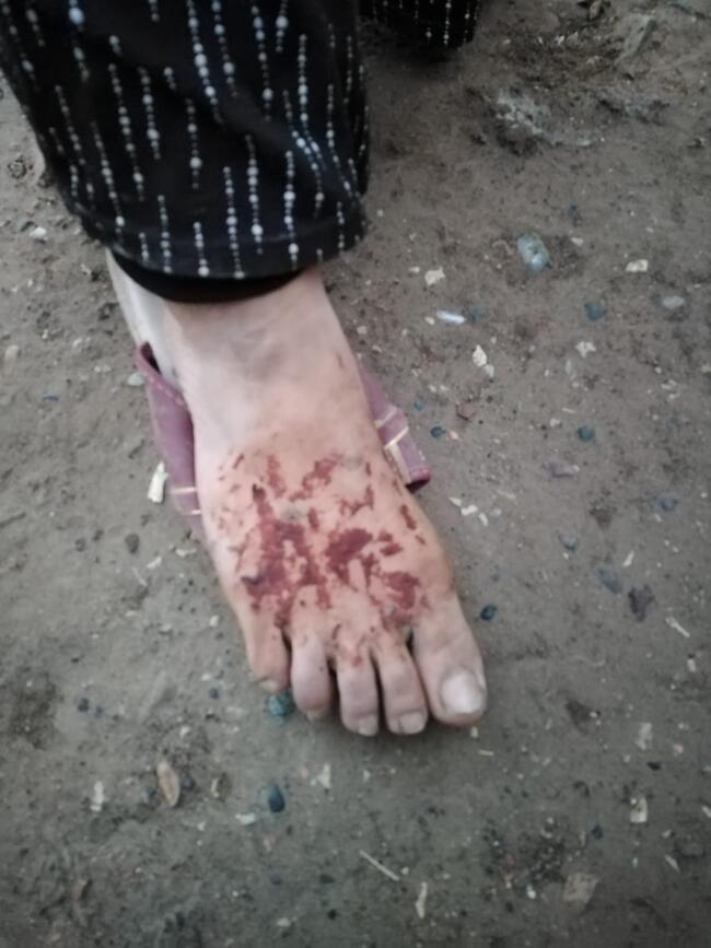 Cani koca eşi ve kızının yüzünü yaktı