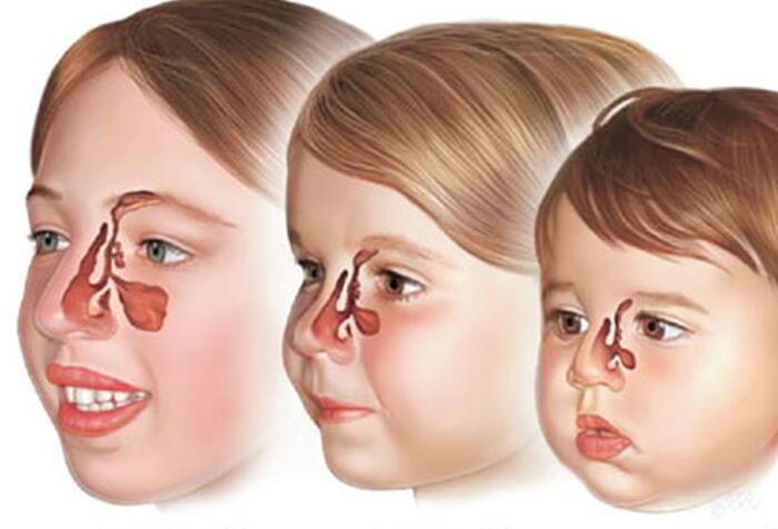 Çocukluk çağı sinüzit ciddiye alınmalı - Sağlık Haberleri