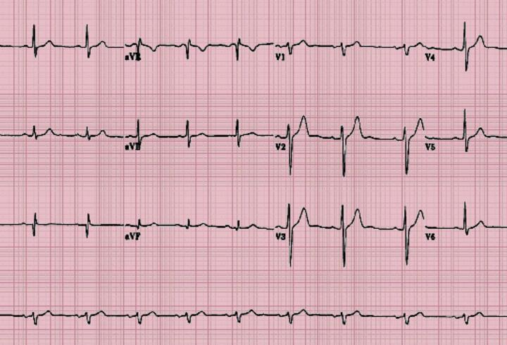Ekg Nedir, Neden Çekilir? Elektrokardiyografi Nasıl Yapılır?
