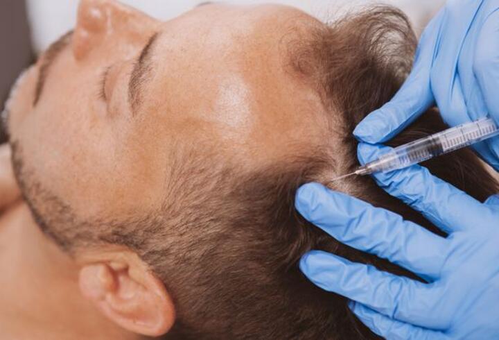 Koronavirüs olanlara saç dökülmesi uyarısı!