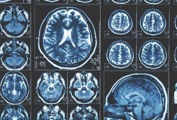 Beyin ve omurilik damar hastalıklarında girişimsel nöroradyoloji tedavisi