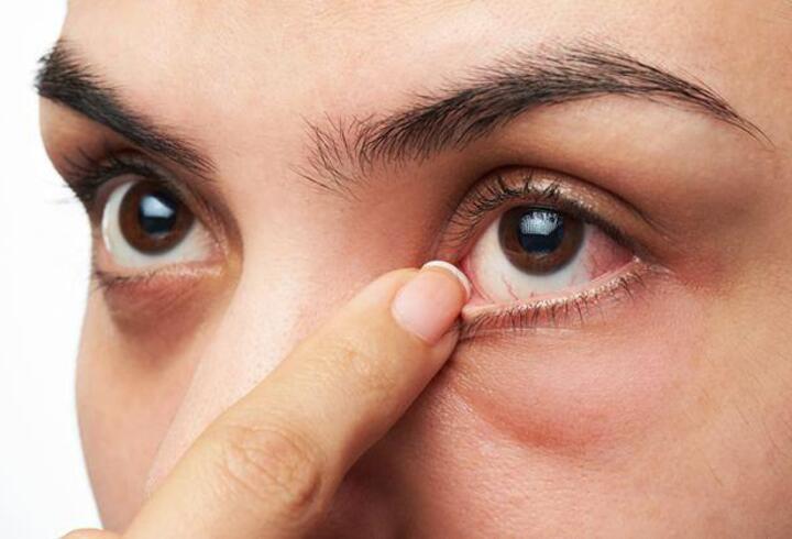 Yaz aylarında en sık görülen göz hastalıkları