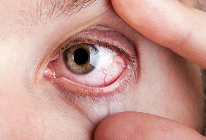 Bu hastalıklar görme kaybına neden olabilir