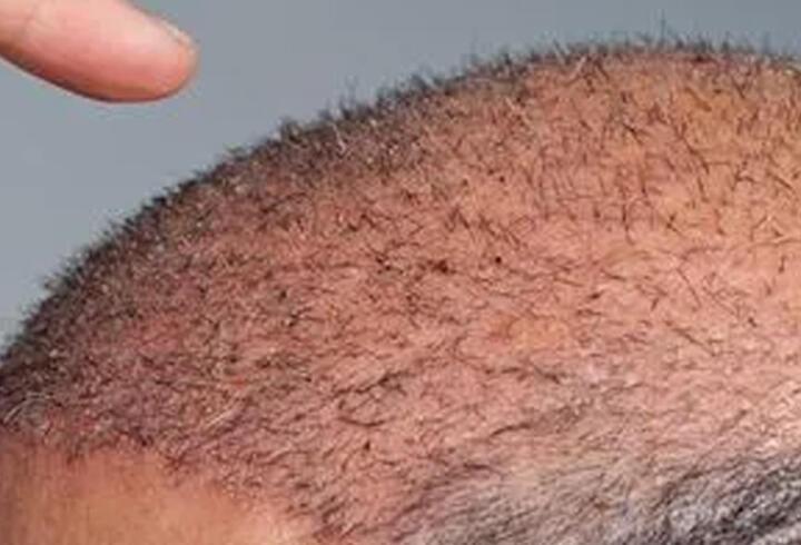 Saç ekimi sırasında ölüm iddiası! Doktor tutuklandı