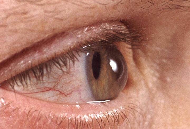 Sonbaharda göz hastalıklarına dikkat