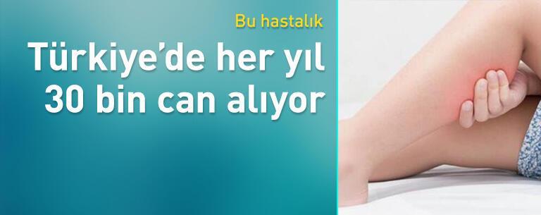 Tromboz Türkiye'de her yıl 30 bin can alıyor