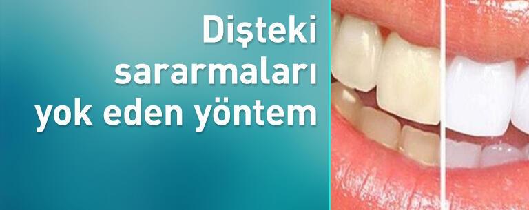 Dişteki sararmaları yok eden yöntem