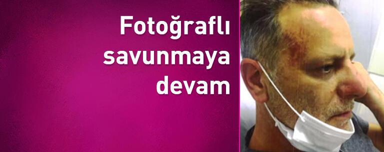 Ozan Güven'den 'fotoğraflı savunmaya' devam!