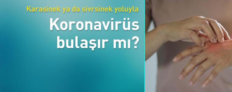 Karasinek ve sivrisinek yoluyla Covid-19 virüsü bulaşabilir mi?