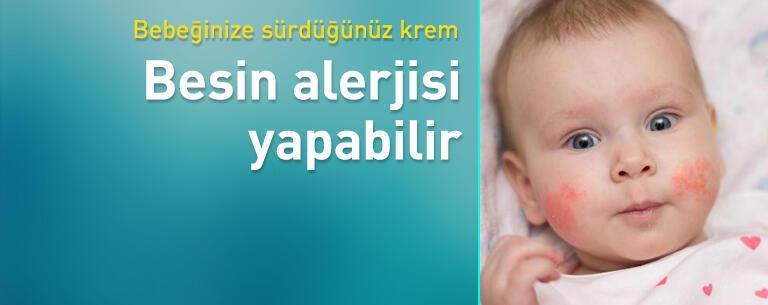 Bebeğinize sürdüğünüz krem besin alerjisi yapabilir