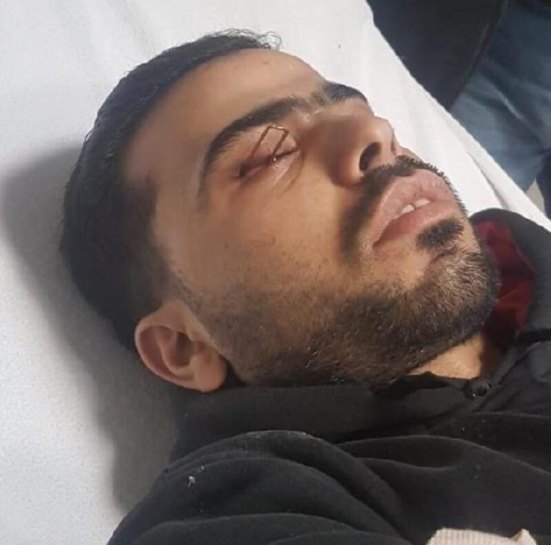 Suriyeli işçinin gözüne zımba çivisi saplandı