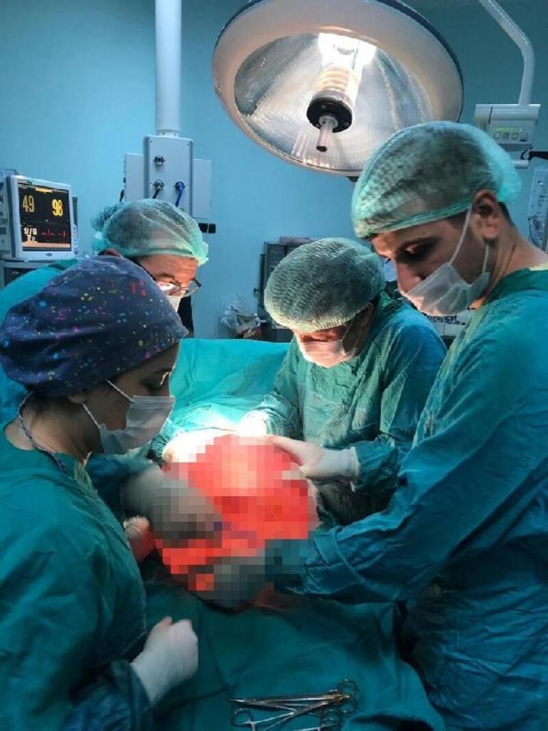 Karın ağrısıyla hastaneye gitti, karnından 13 kiloluk kitle çıkarıldı