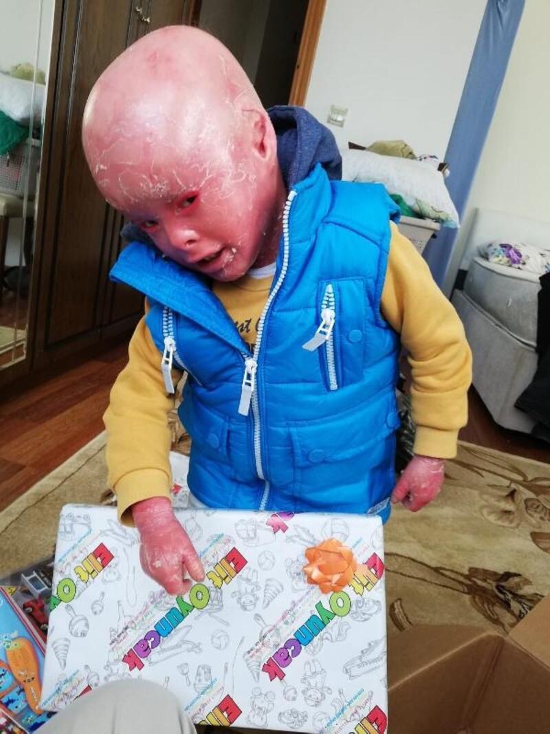 Balık pulu hastası Emir'e yardım eli uzandı
