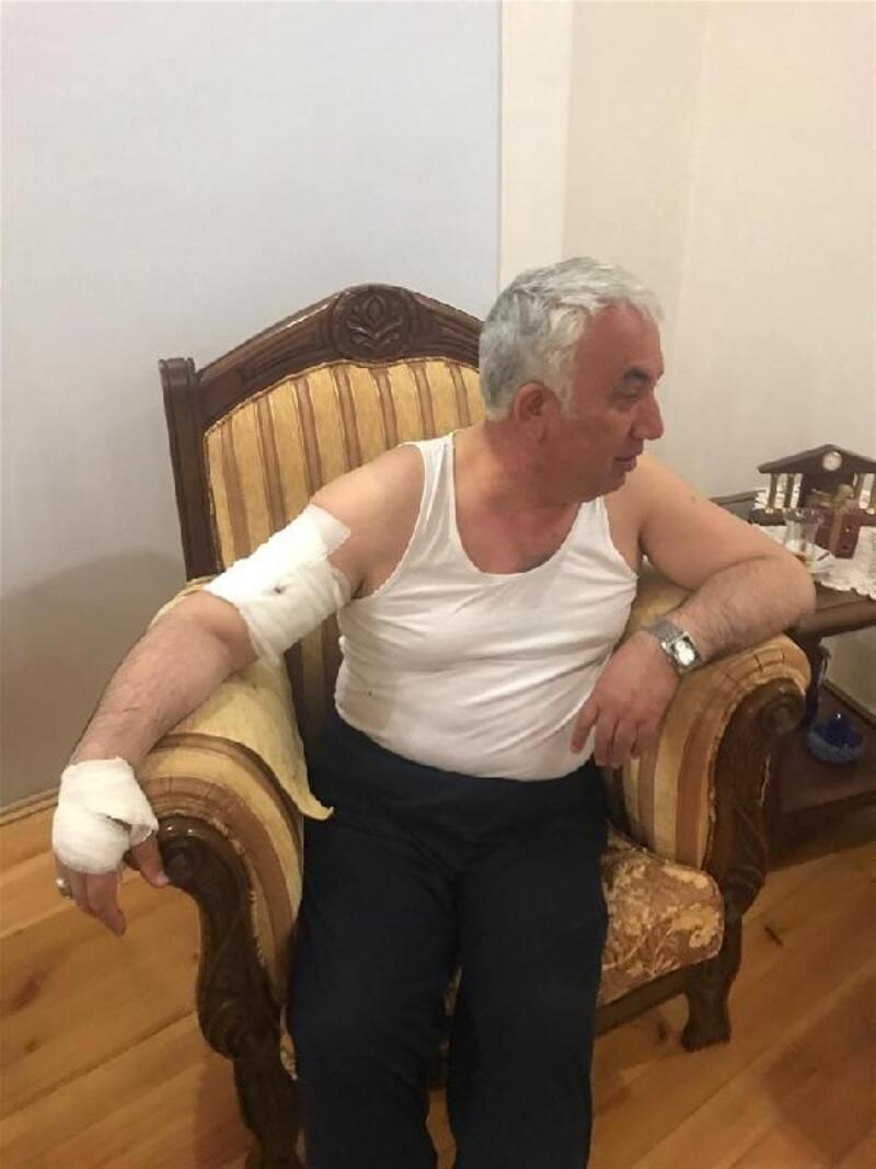 Arpaçay Belediye Başkanı, köpek saldırısında yaralandı