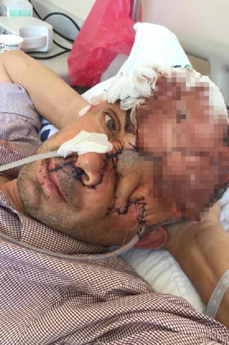 Dişini çektirdikten sonra sol gözünü kaybetti iddiasına yalanlama