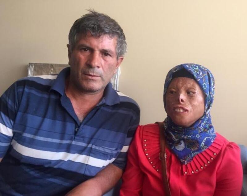Yüz nakli bekleyen Leyla, Ömer Özkan'la görüşmek için Antalya'da