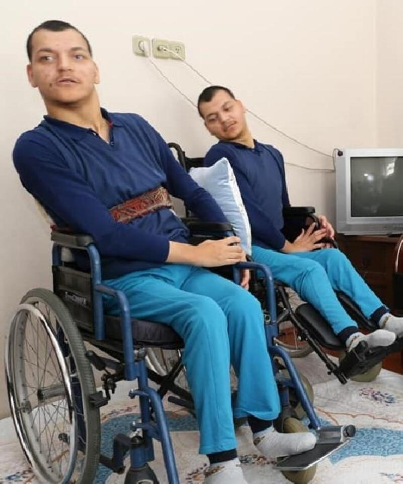 Engelli ikizlerini sevgileriyle yaşatıyorlar
