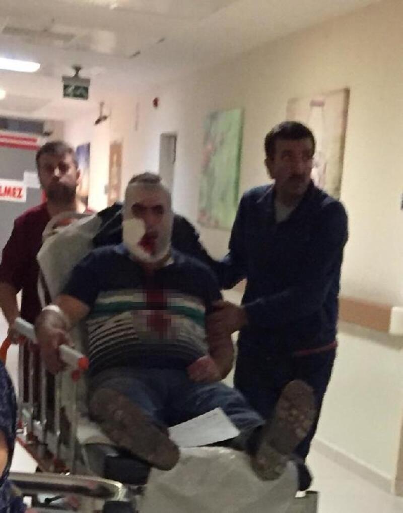 Vincin kancası yüzüne çarpan işçi ağır yaralandı