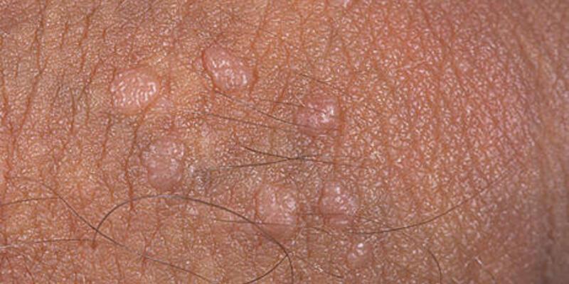 Genital siğiller kanser yapar mı?