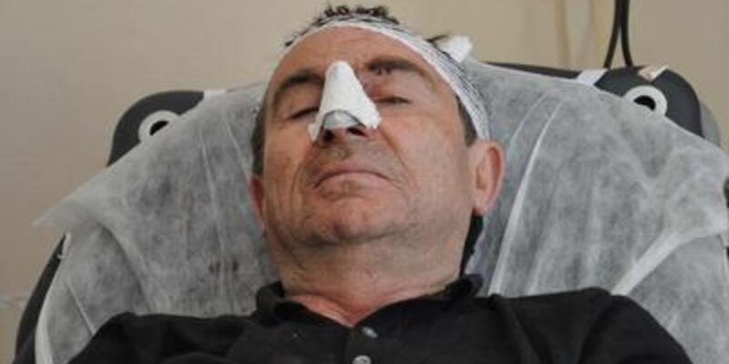 BDP'li milletvekili trafik kazası geçirdi