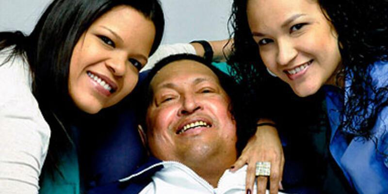 """""""Chavez yaşam savaşı veriyor"""""""