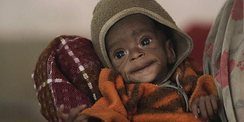 Açlık 8 milyon çocuğu tehdit ediyor