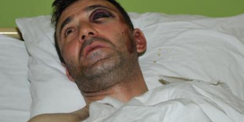 Eski Fenerbahçeli futbolcu balkondan düştü