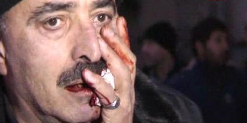 """""""Kadına vurma"""" dedi, yüzünden bıçaklandı!"""