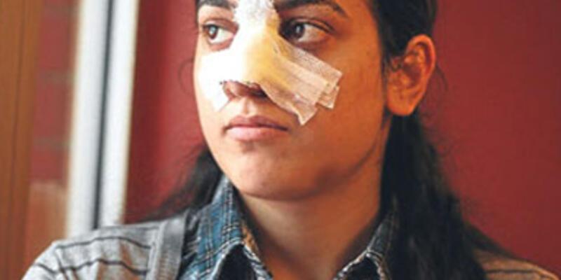 Bu kez polis burnunu kırdı!