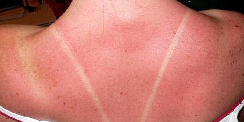 Güneş yanıklarındaki acının kaynağı bulundu