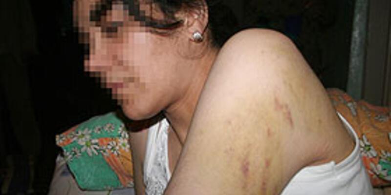 Her 3 kadından 1'i fiziksel şiddet görüyor