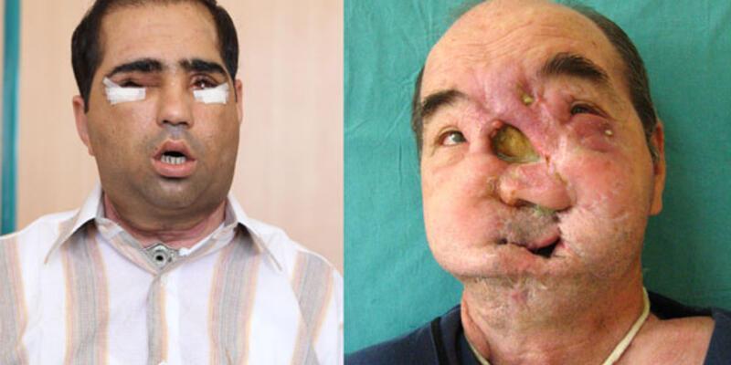 Ameliyattan sonra ilk kez görüntülendi
