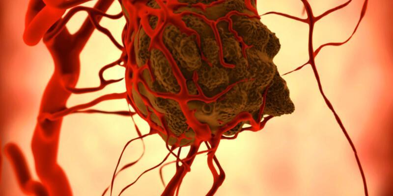 Kanser hastalarına şiddetli ağrılardan kurtulma müjdesi