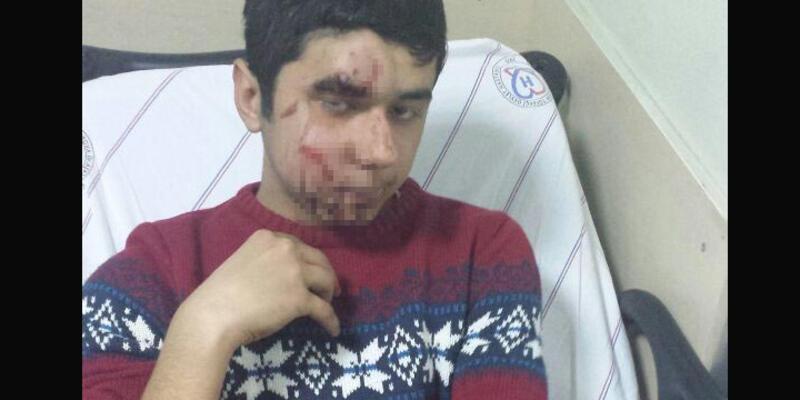 Öcalan eyleminde gaz kapsülü yüzüne isabet etti