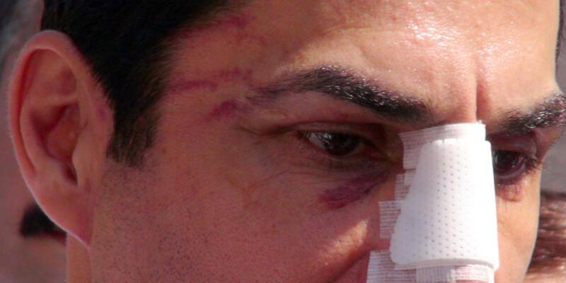 CHP'li Hüseyin Sağ'a saldırıda iki gözaltı