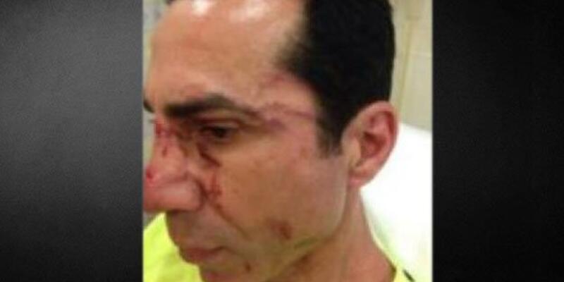 Hüseyin Sağ'a saldıranlar serbest bırakıldı