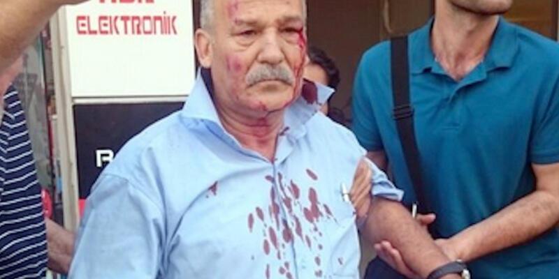 Sabahattin Pişkinbaş Suruç'taki bombadan da yaralı kurtuldu