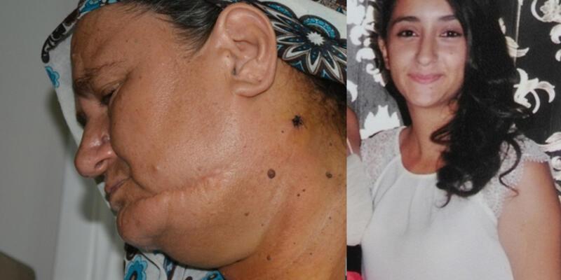 Bursa'da bir genç kız kör kurşun kurbanı oldu